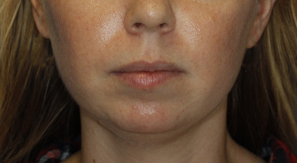 Chin Implant Before Frontal