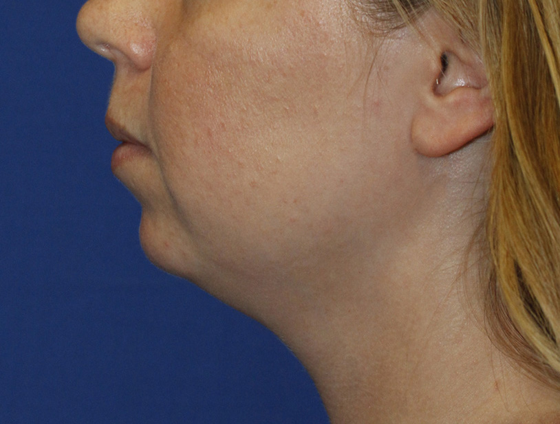 Chin Implant Before L Profile