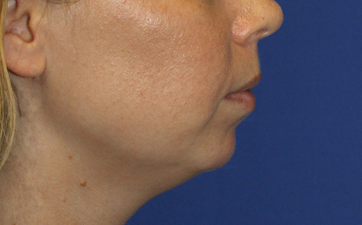Chin Implant Before R Profile