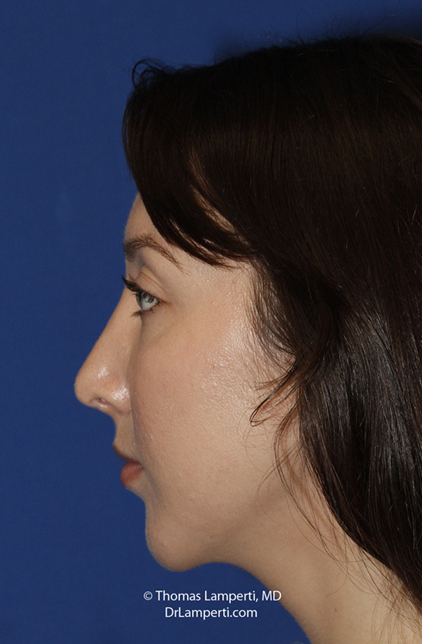 Chin Implant After L Profile