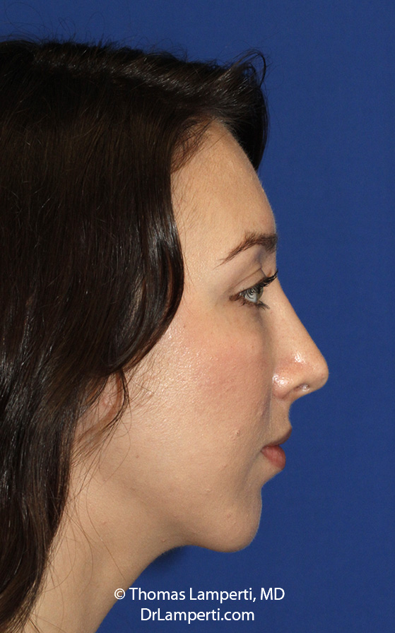 Chin Implant After R Profile