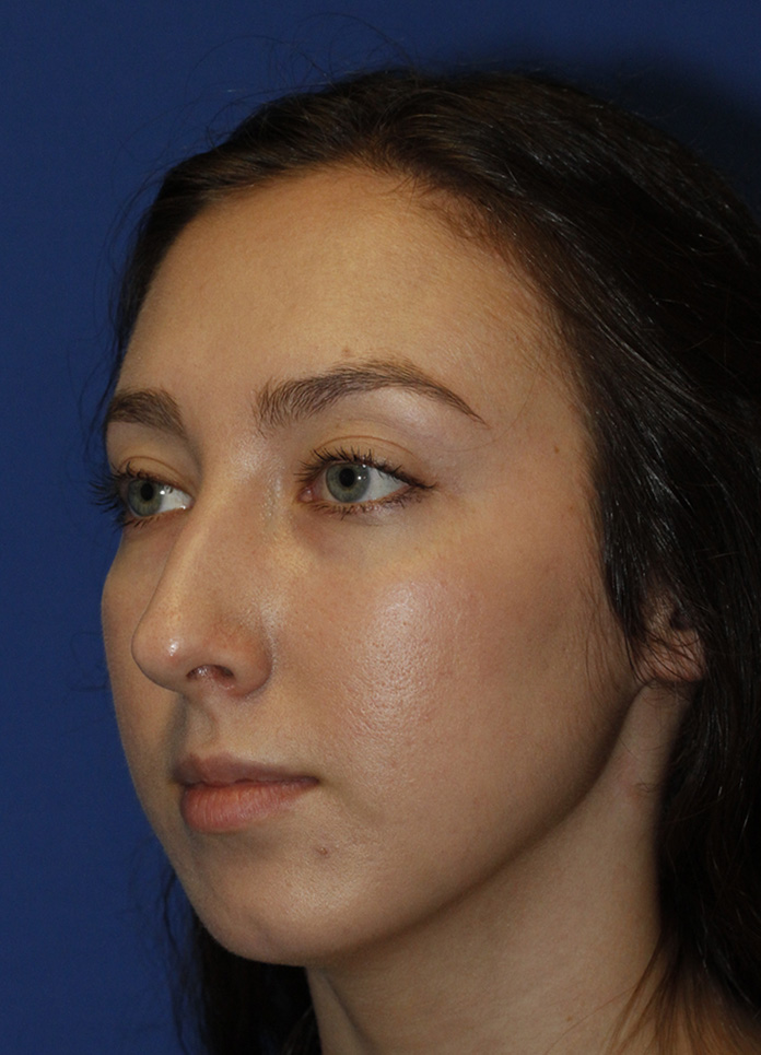 Chin Implant Before L Oblique