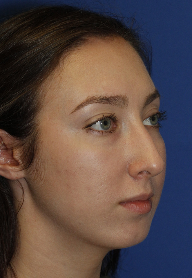 Chin Implant Before R Oblique
