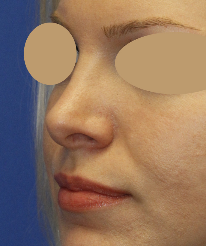 Revision Rhinoplasty Before Left Oblique