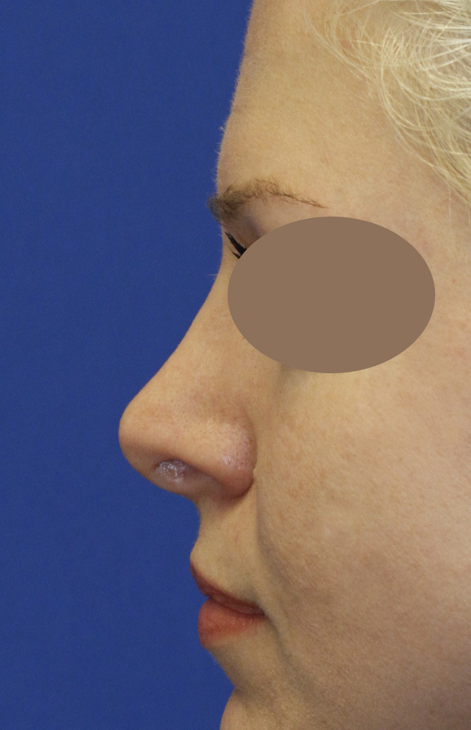 Revision Rhinoplasty Before Left profile