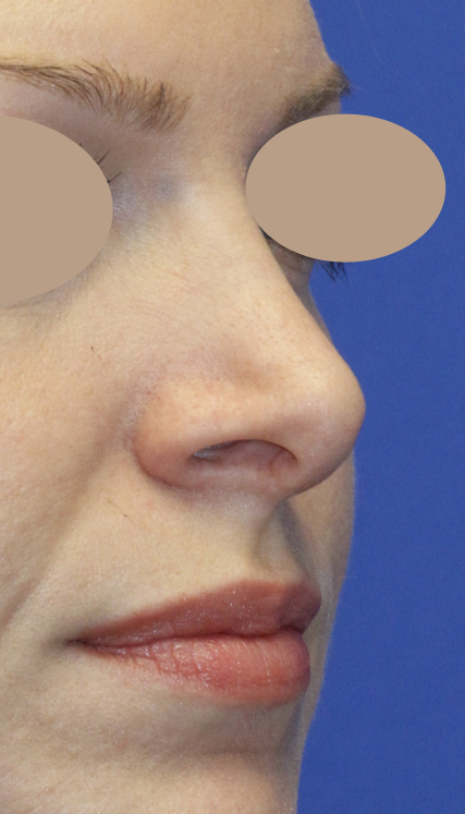 Revision Rhinoplasty Before Right oblique