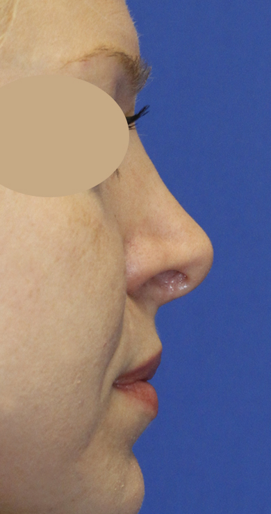 Revision Rhinoplasty Before Right Profile