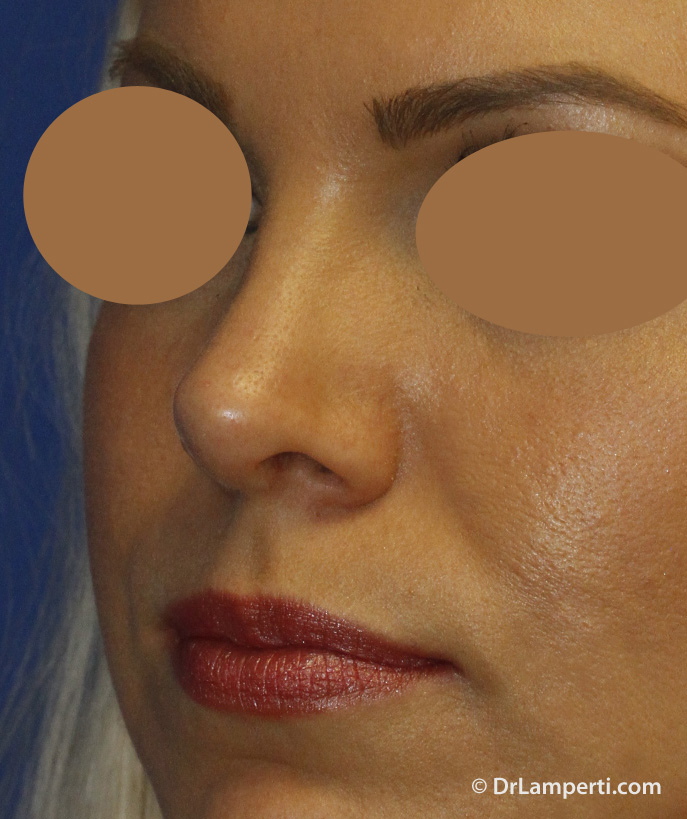 Revision Rhinoplasty After Left Oblique
