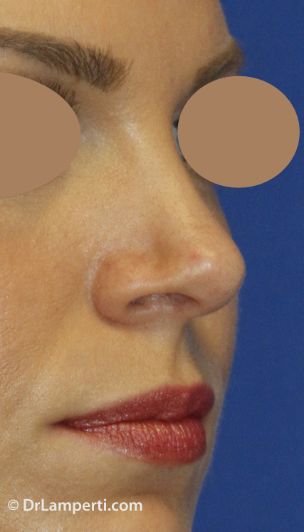 Revision Rhinoplasty After Right Oblique
