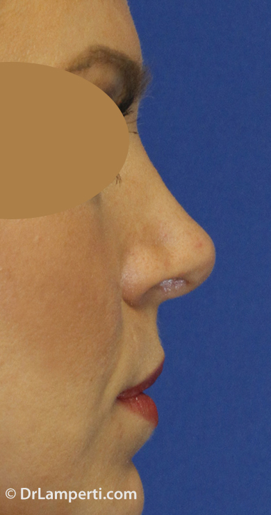 Revision Rhinoplasty After Right Profile