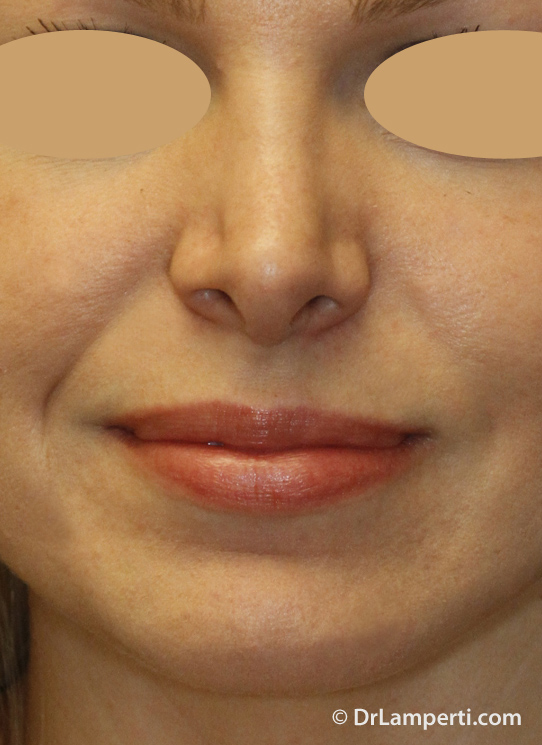 Revision Rhinoplasty Before Frontal