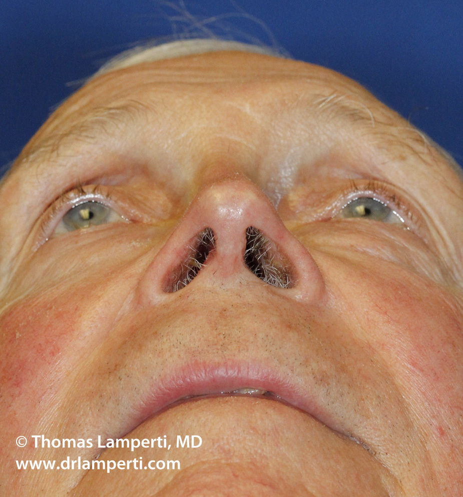 Revision Rhinoplasty Base After