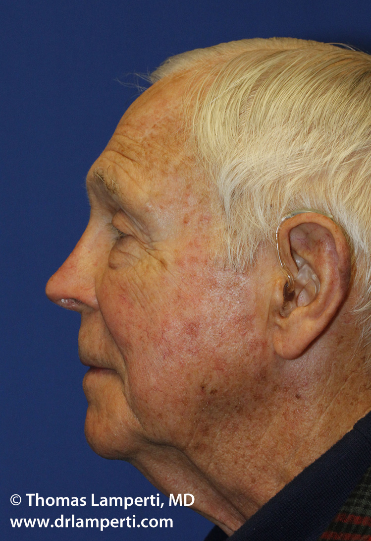 Revision Rhinoplasty L Profile After