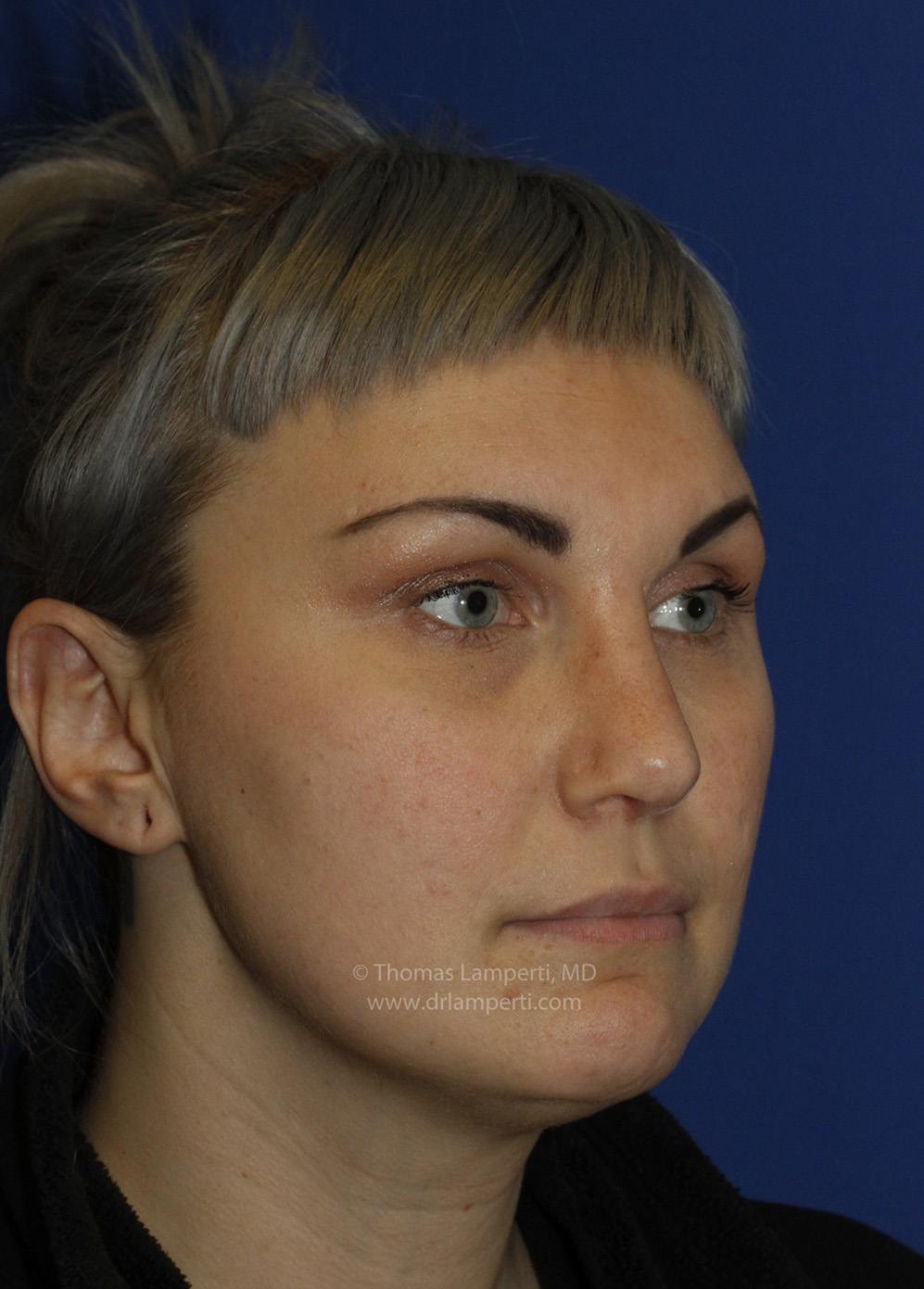 Rhinoplasty After R Oblique