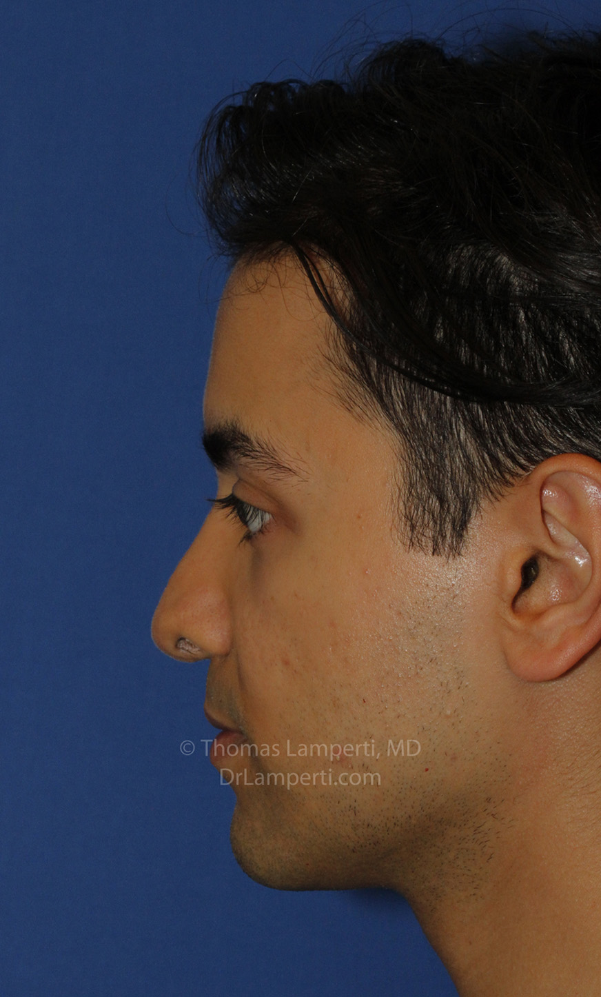 Revision Rhinoplasty After L Profile
