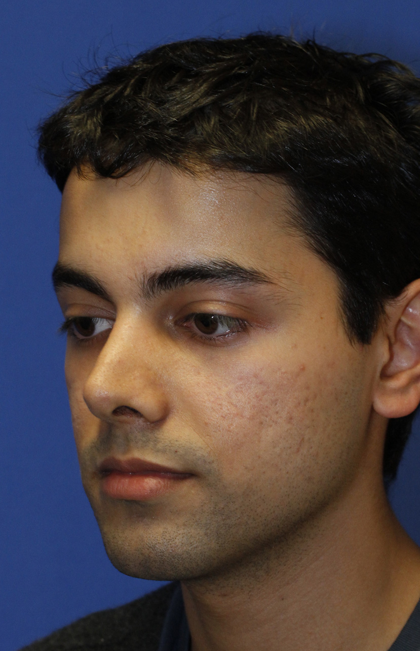 Revision Rhinoplasty Before L Oblique