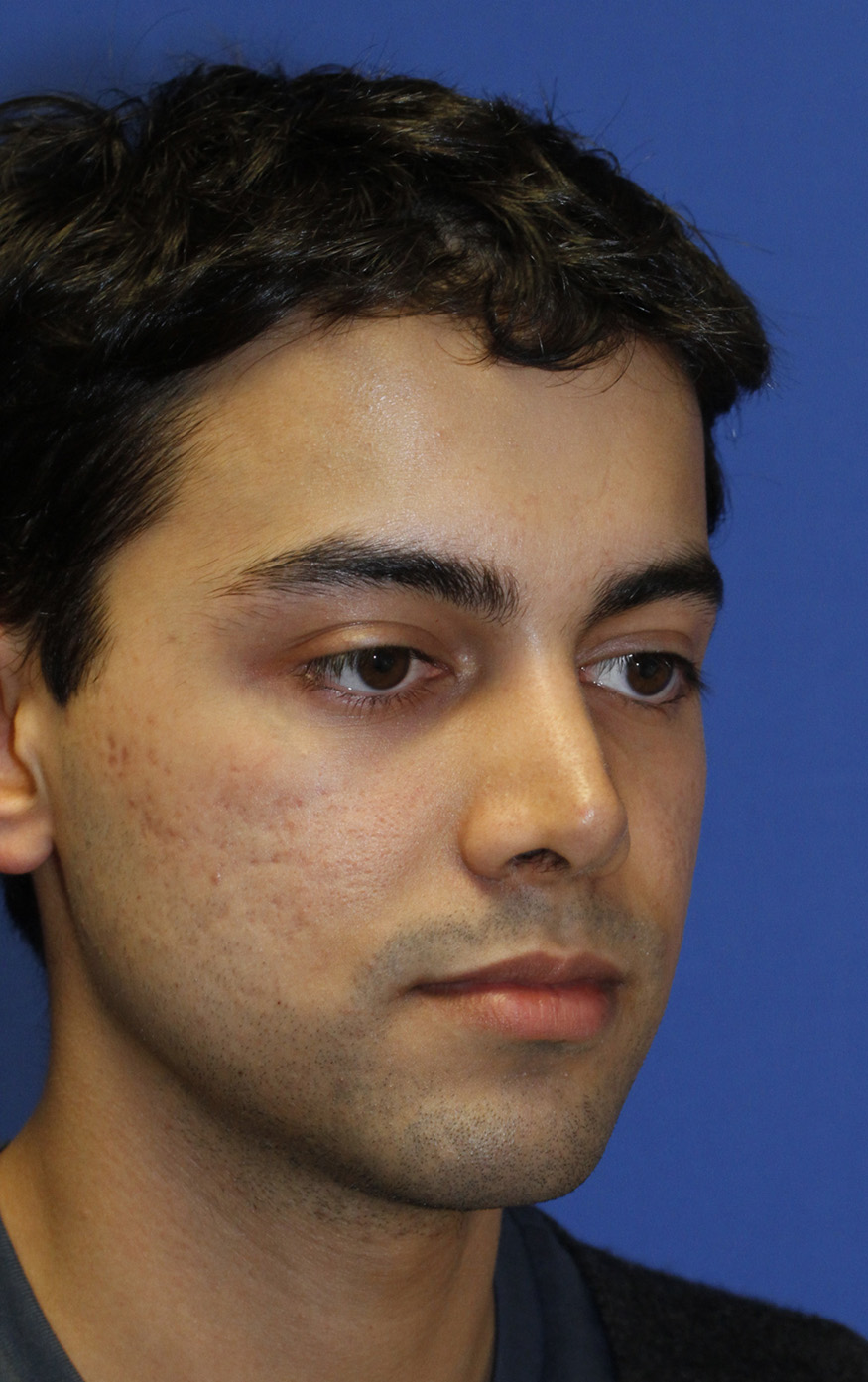 Revision Rhinoplasty Before R Oblique