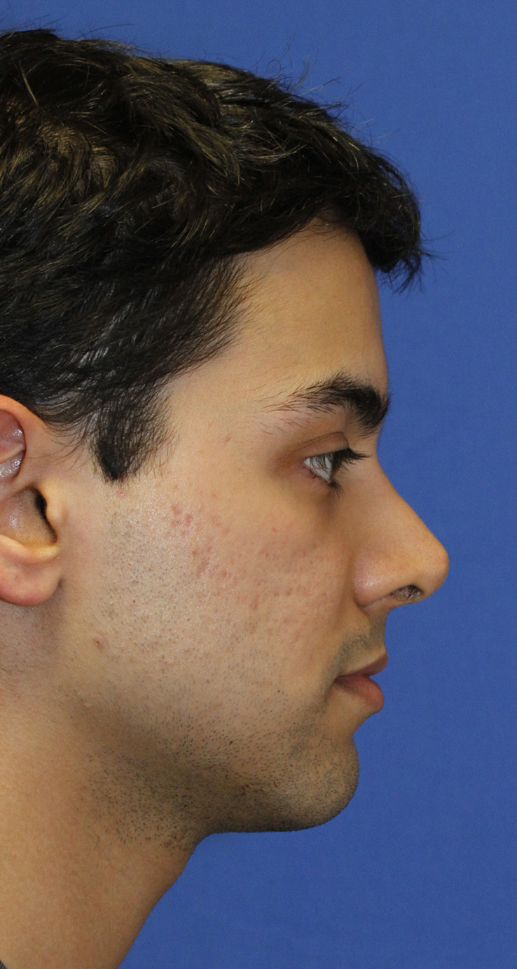 Revision Rhinoplasty Before R Profile