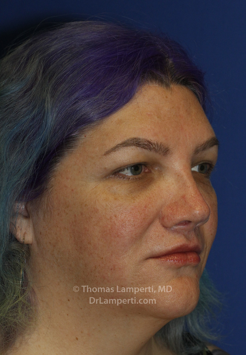 Revision Rhinoplasty After R Oblique
