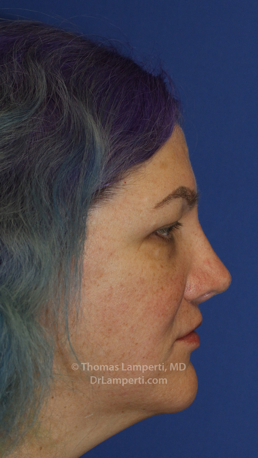 Revision Rhinoplasty After R Profile