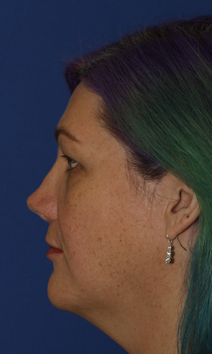 Revision Rhinoplasty Before L Profile