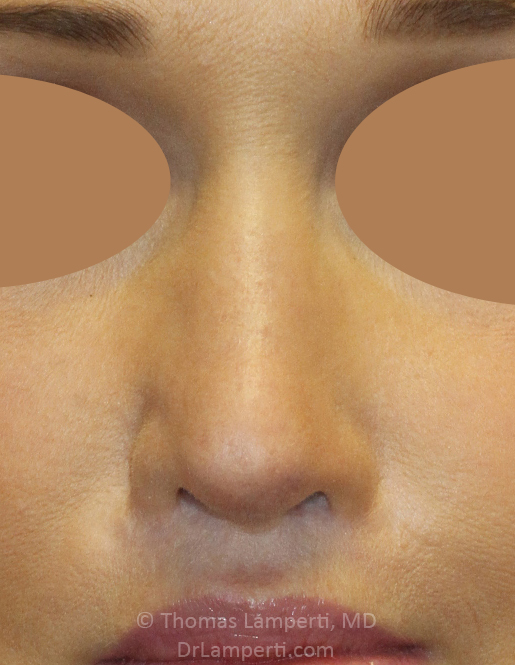 After Revision Rhinoplasty Frontal