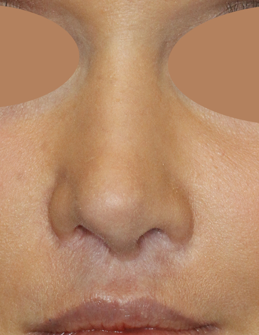 Before Revision Rhinoplasty Frontal