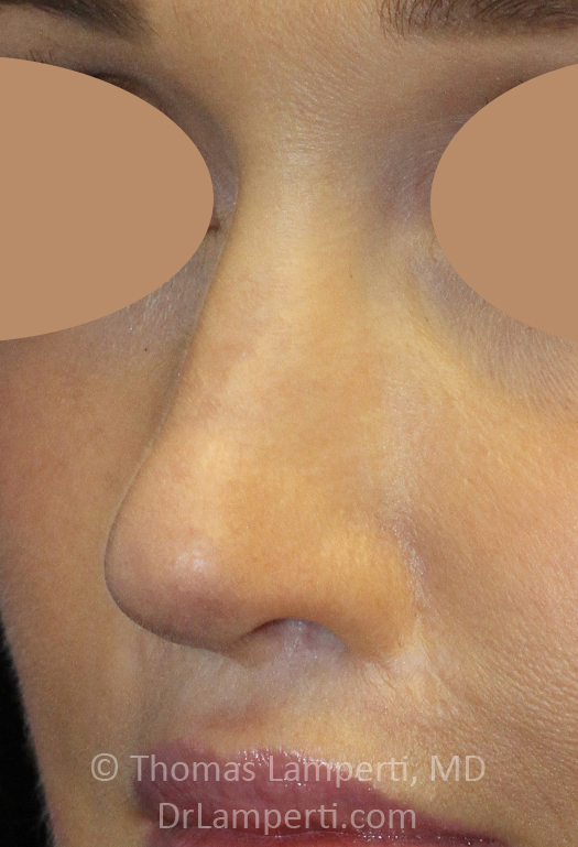After Revision Rhinoplasty Left Oblique