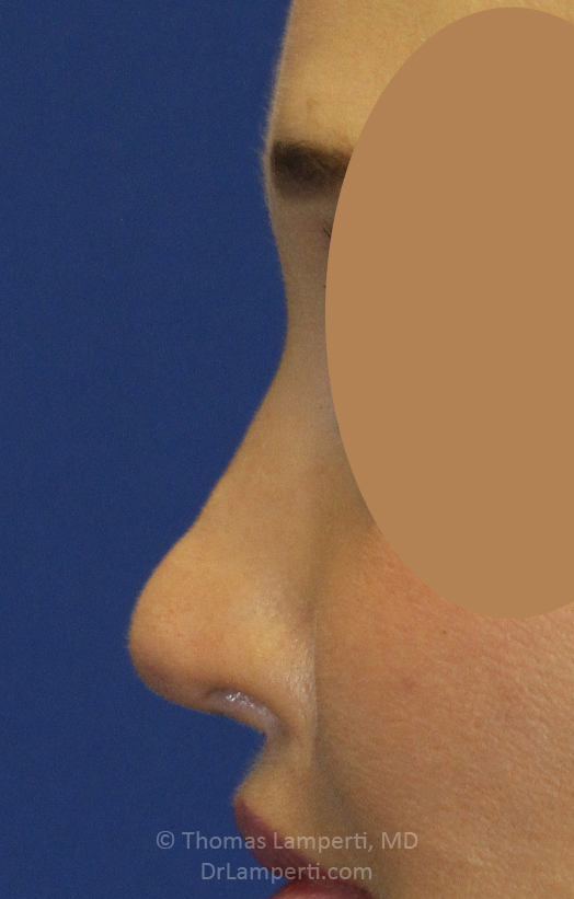 After Revision Rhinoplasty Left Profile