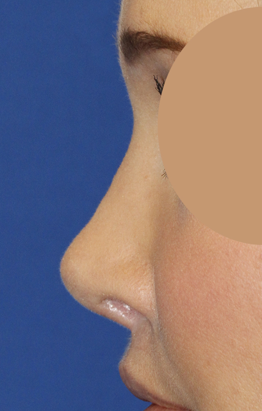 Before Revision Rhinoplasty Let Profile