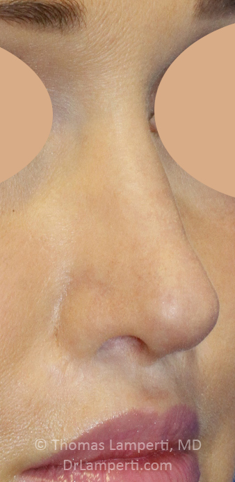 After Revision Rhinoplasty R Oblique