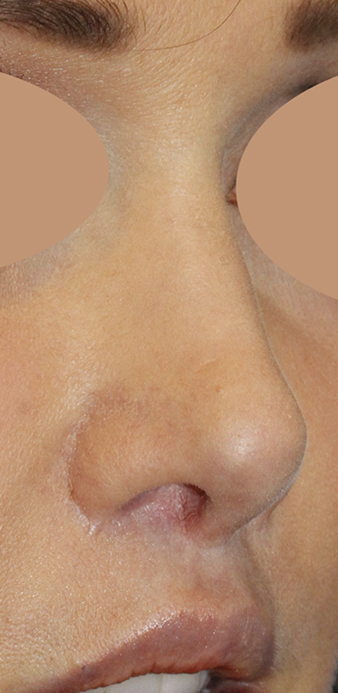 Before Revision Rhinoplasty Right Oblique