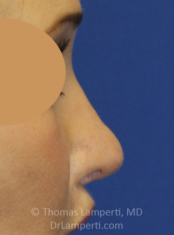 After Revision Rhinoplasty Right Profile
