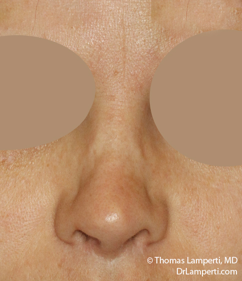 Rhinoplasty Frontal After