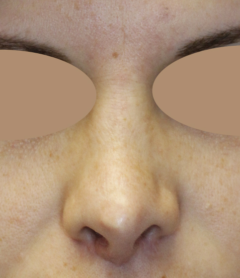 Rhinoplasty Frontal Before