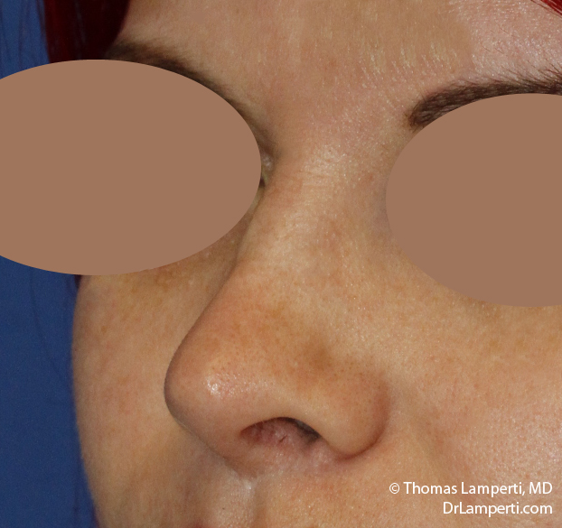 Rhinoplasty L Oblique After