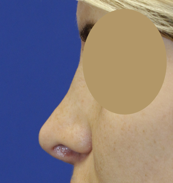 Rhinoplasty L Profile Before