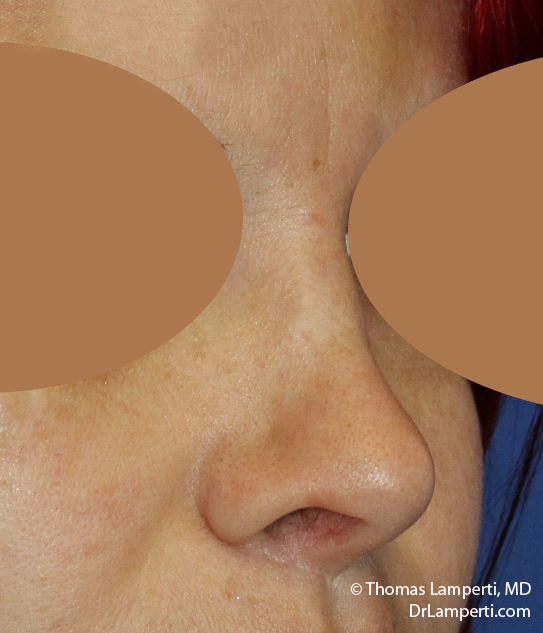 Rhinoplasty R Oblique After