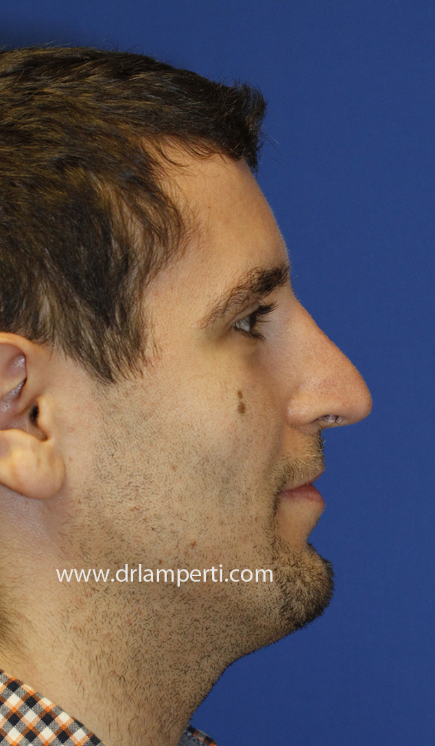 Revision Rhinoplasty Profile After