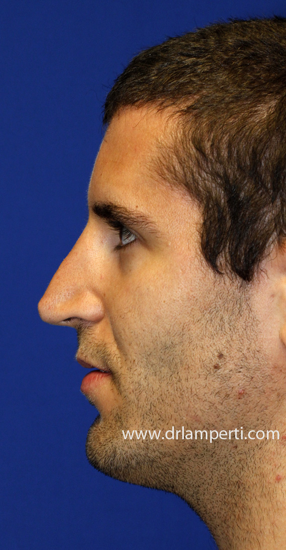 Revision Rhinoplasty Oblique Before