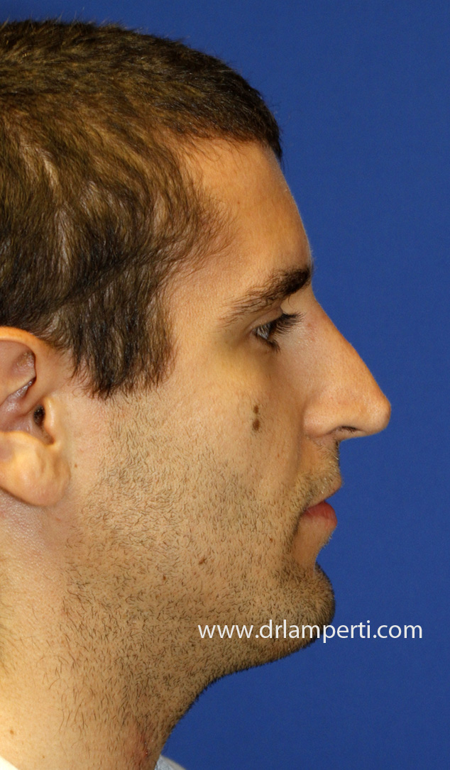 Revision Rhinoplasty Profile Before