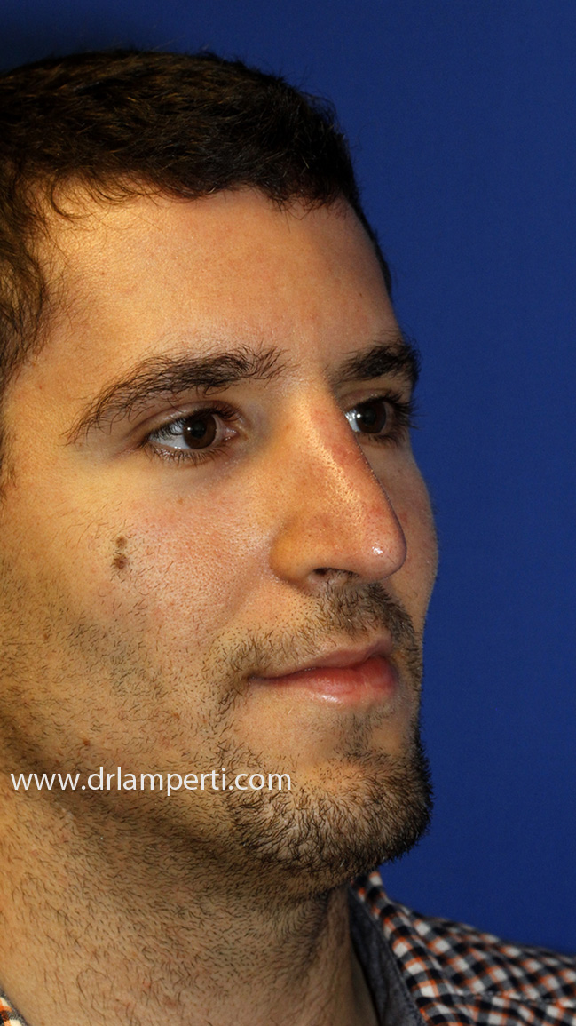 Revision Rhinoplasty Oblique After