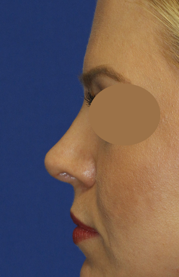 Revision Rhinoplasty After Left Profile