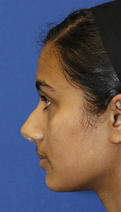 Indian rhinoplasty preop profile