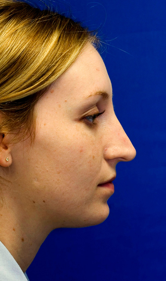 Before Rhinoplasty photo