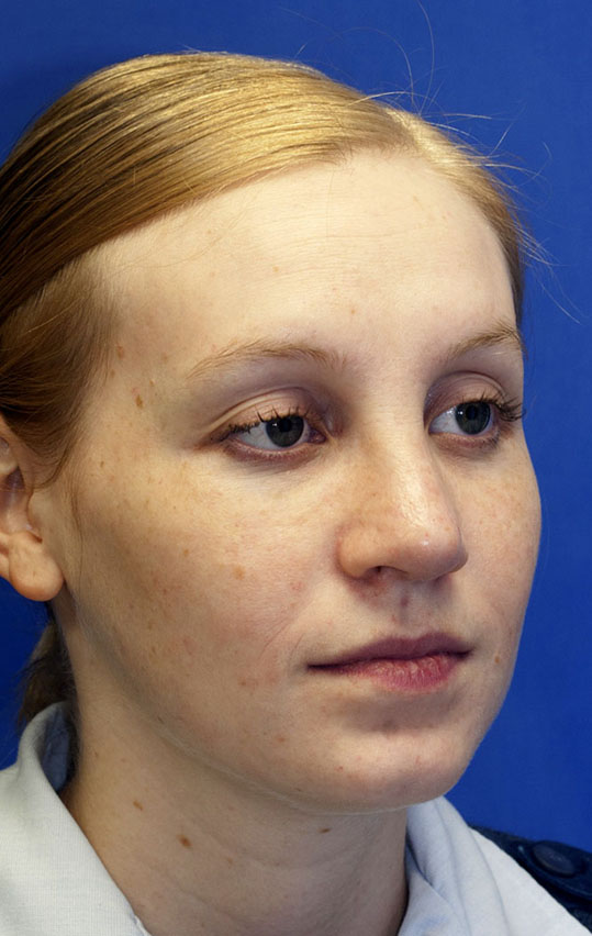 After Rhinoplasty photo