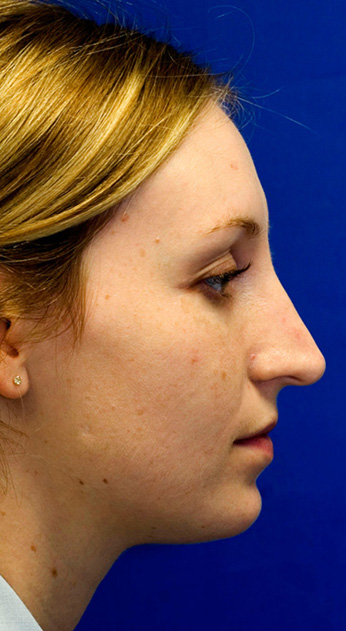 Before Rhinoplasty Profile