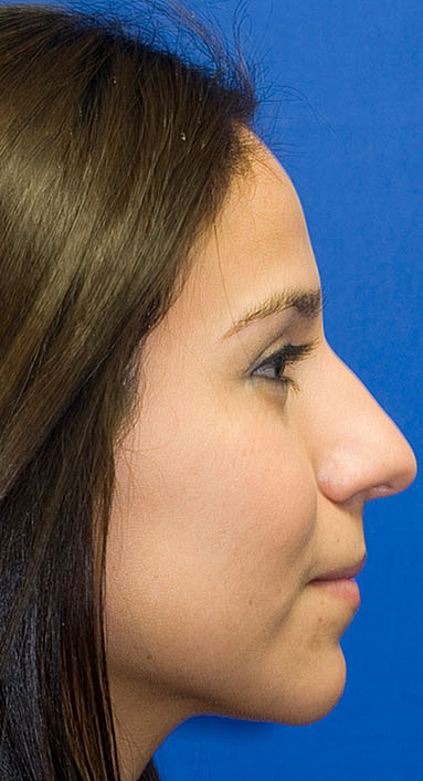 Before Rhinoplasty Frontal