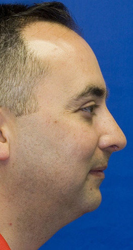 After rhinoplasty profile