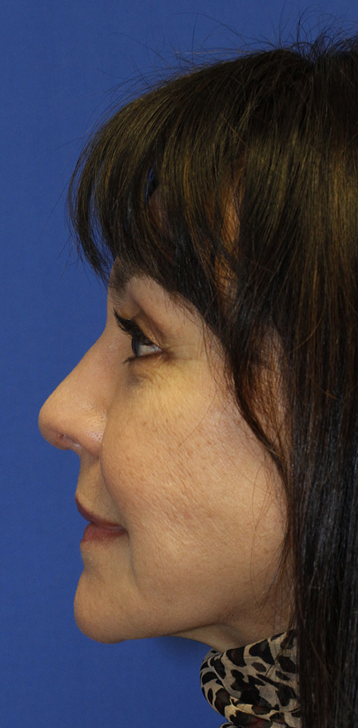 After rhinoplasty profile photo